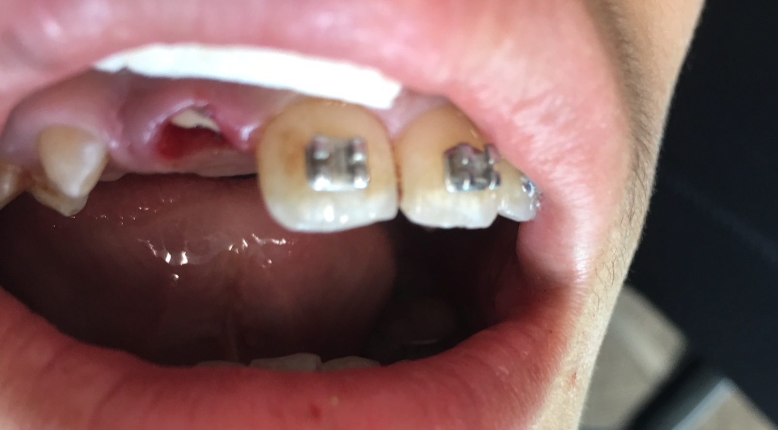 mouth guard broken tooth
